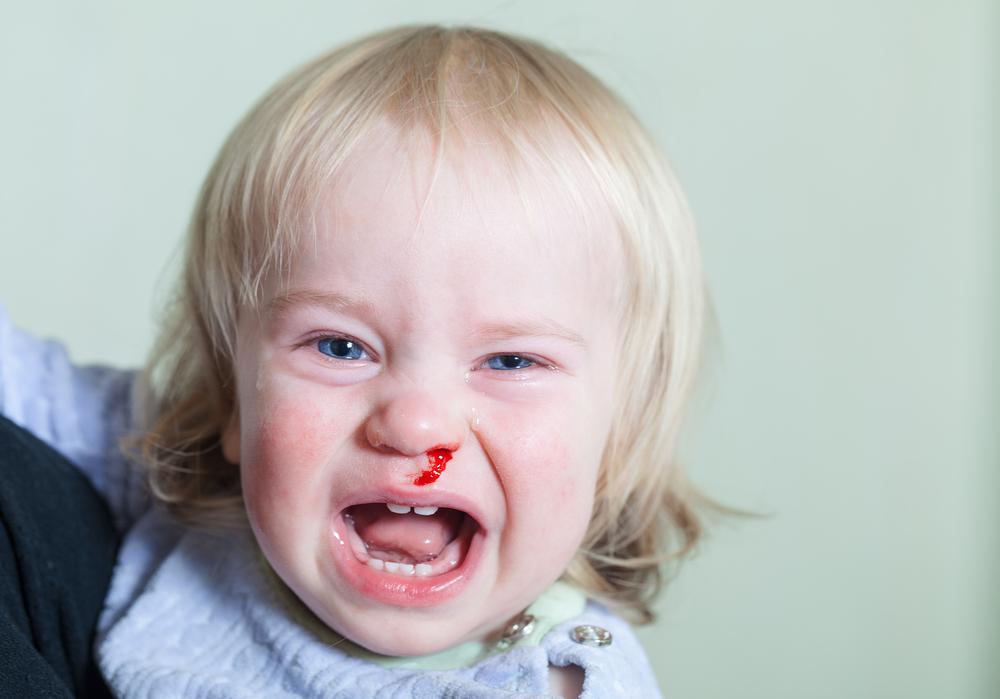 中 就寝 幼児 鼻血